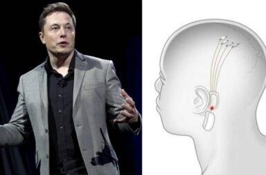 Elon Musk hizo una demostración de Neuralink