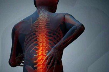 Osteomalacia (Falta de Vitamina D)