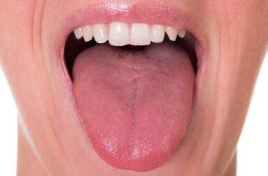 Leucoplasia ( parches blancos y espesos en las encías )