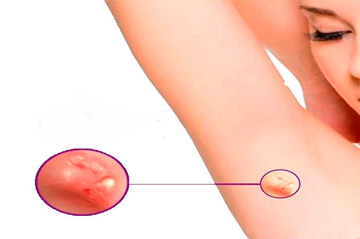 Hidrosadenitis supurativa